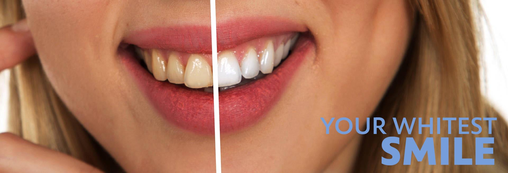 Image of tooth whitening results, before and after, at Clínica Dental Moraira