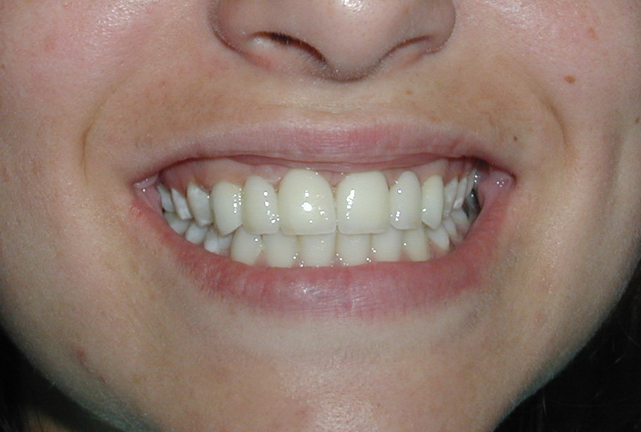 Image ZIrconia crowns Moraira Dental Clinic